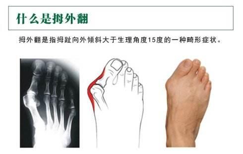 大脚骨的形成原因有哪些