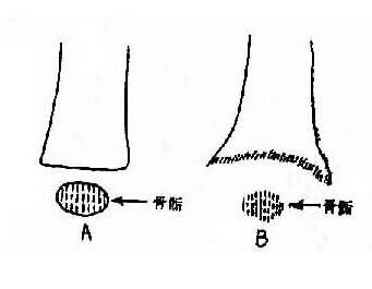 儿童长骨结构图