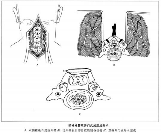 颈椎椎管双开门式减压成形术
